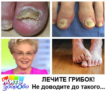 Как вылечить грибок на пальцах ног - методы лечения