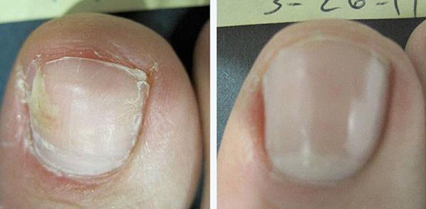 Грибок на ногтях ног лечение киев