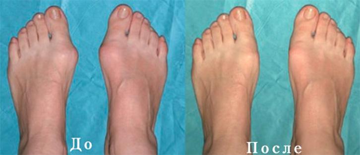Болит палец на ноге после операции