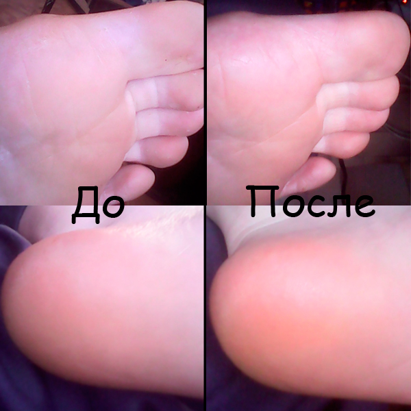 Носки для педикюра, Педикюрные носочки, SOSU