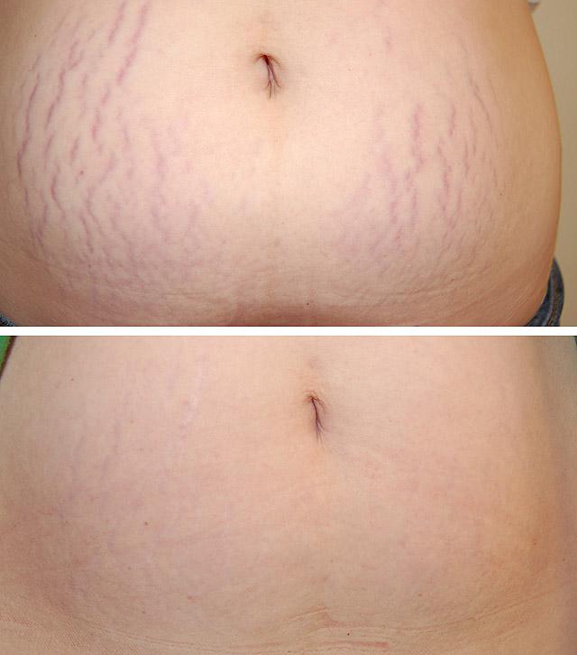 лазерное удаление растяжек фото до и после