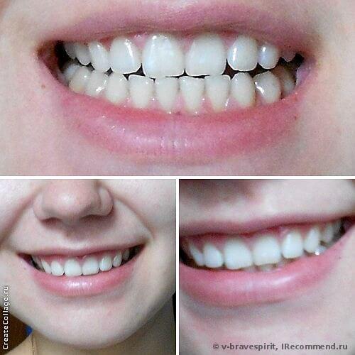 мои зубки при дневном освещении